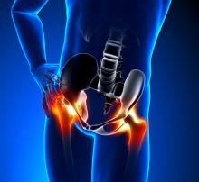 Endoprotezoplastyka biodra – lek na problemy z poruszaniem się